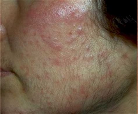 adult acne picture 7