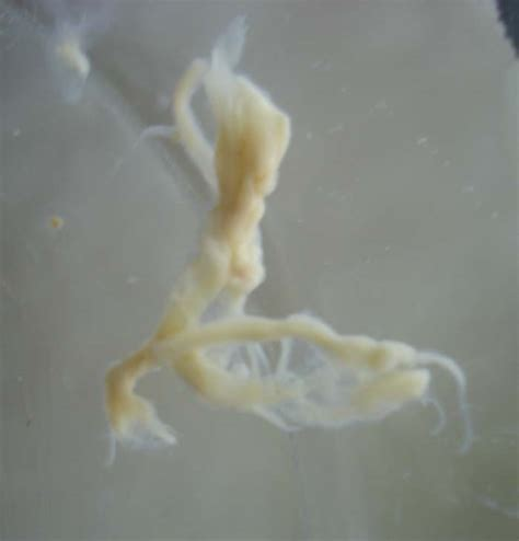 white intestinal parasites picture 3