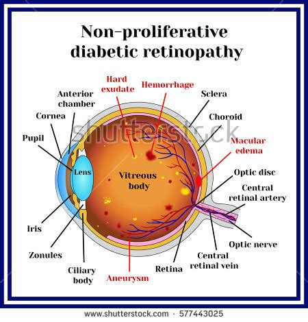diabetic eye countertop displays picture 14