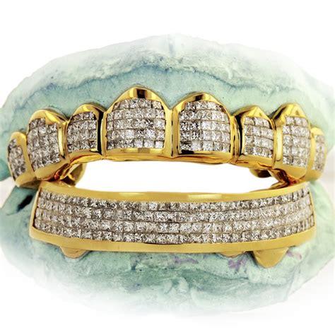 custom gold teeth picture 15