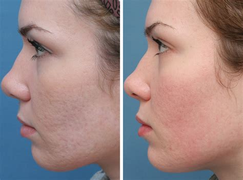 acne scar treatments in houston picture 1