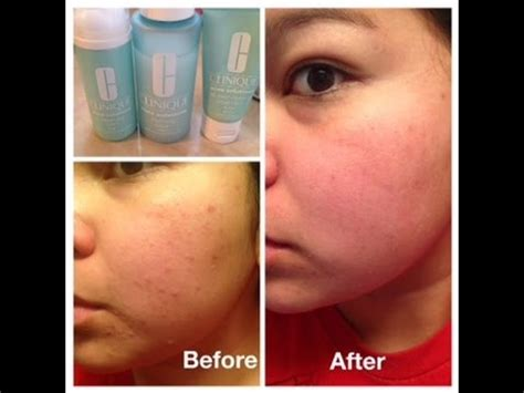 acne solutions that work picture 7