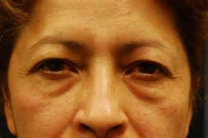 arlington breast augmentation picture 10