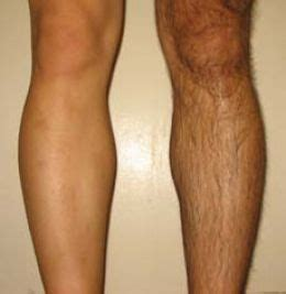2014 men shaving legs picture 10
