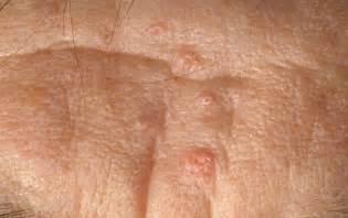 small cyst on stretch mark under the skin picture 7