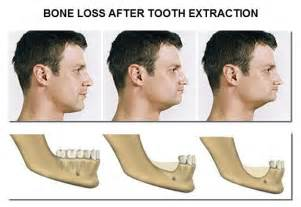 herbal treatment for dental bone loss picture 5