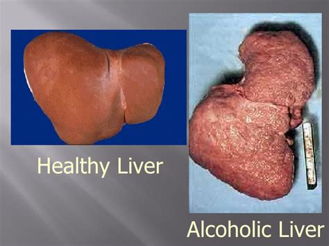 cholesterol and alchol picture 18