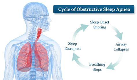 oklahoma sleep apnea treatment picture 2
