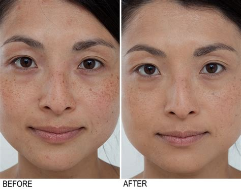 home acne treatment picture 11