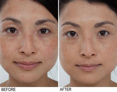acne treatment aloe free picture 14