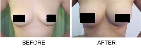 male enhancement without pills picture 7