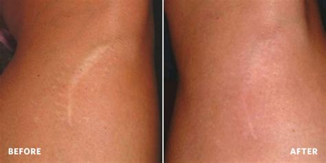 success stories for on skin needling stretchmarks picture 7