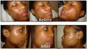 does revitol skin brightener work for african americans picture 9