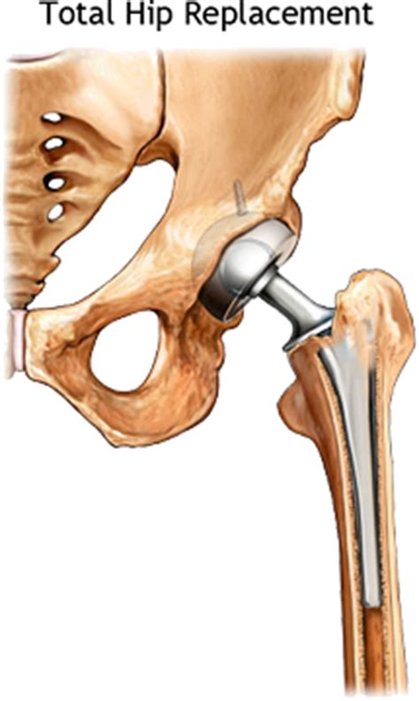 image of hip replacement joint picture 11