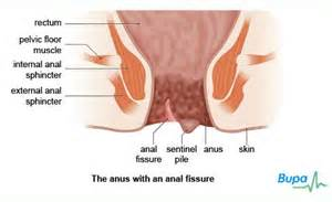small soft bowel movement picture 3