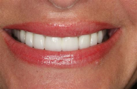 fort worth teeth whitening picture 3