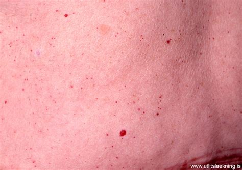 skin angiomas picture 6