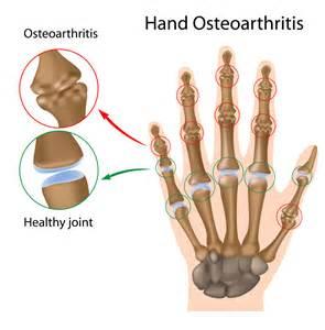osteoarthritis picture 2