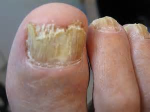 foot nail fungus picture 1