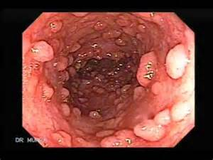 Polyps on your colon picture 5