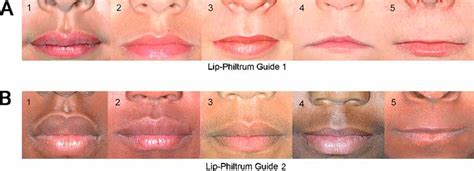 Thin vermition of the lips picture 5