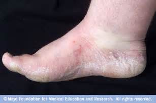 dry skin on feet and hiv picture 6