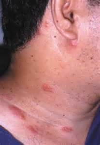 c4 causing acne picture 15