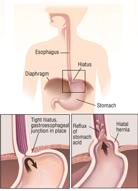 chinese medecine to treat hiatal hernia picture 11