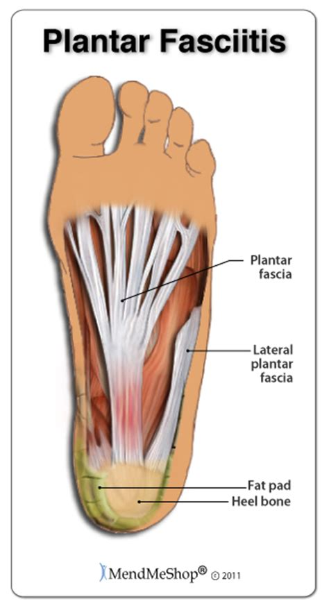 cure for muscle fasciae picture 10