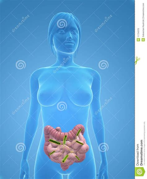 infection of colon picture 6