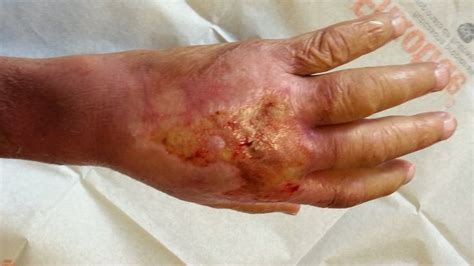contagious bacterial blood infections picture 11