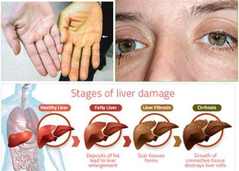 chronic liver disease skin disorder name picture 6