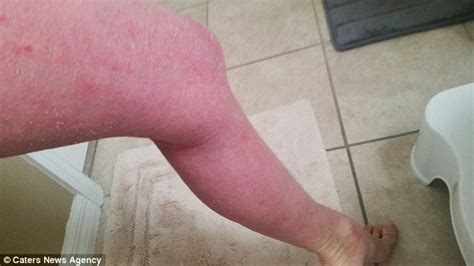 how to treat steriod burn on skin picture 3