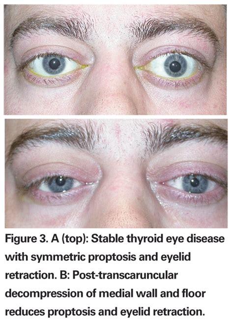 thyroid eye disease treatment picture 2