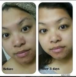 oi acne picture 7