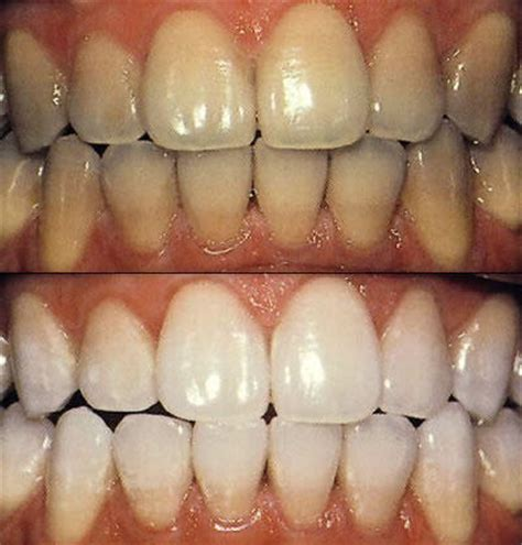 teeth whiteners picture 3