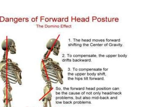 muscle and joint pain with fatigue picture 10
