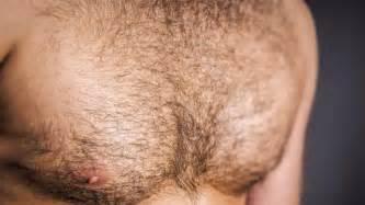 testosterone oral picture 3