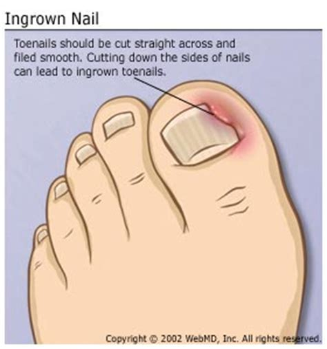 self removal of ingrown toenail picture 5