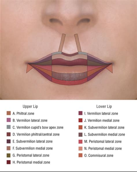 how much does lip augmentation cost picture 5