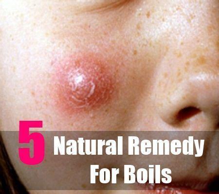 antibiotics boils picture 19