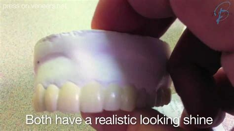 cheap snap on veneers for h picture 6