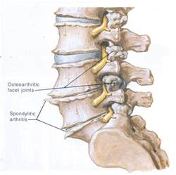 degenerative disc joint picture 14