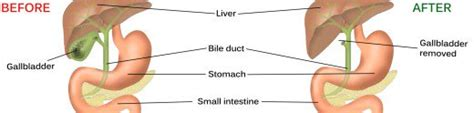 what happens to fat after gall bladder removal picture 11