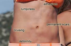 lipo 6 before and after pictures picture 7