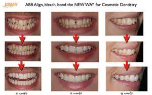 align of teeth after braces picture 11