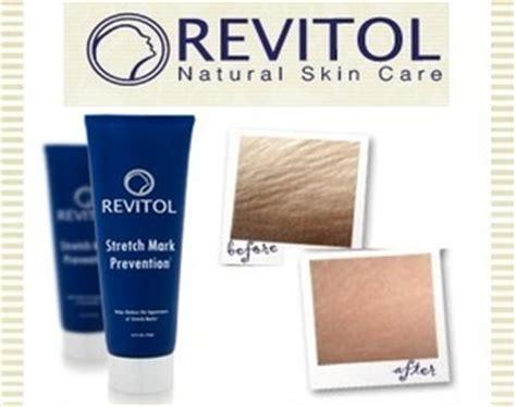 revitol stretchmark cream price in mercury picture 9