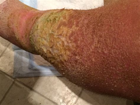 flaky skin pain picture 13