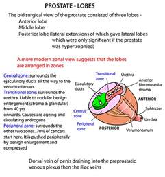 Prostate cancer stage 3 picture 11