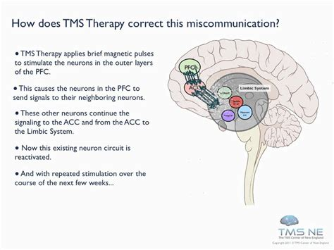 magnetic therapy picture 2